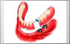 磁石を用いた義歯