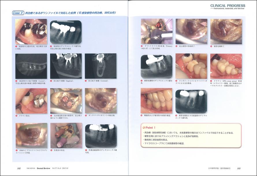 日本歯科評論 8月号に掲載されました。